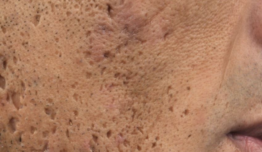 Ice pick acne scars on face