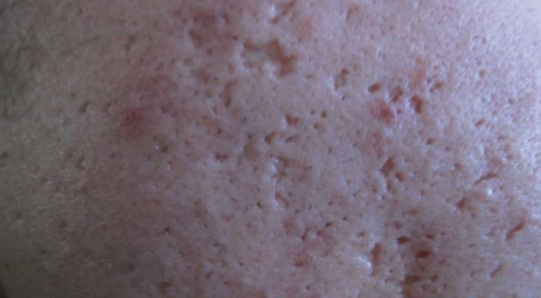 Ice pick acne scars - they need fillers