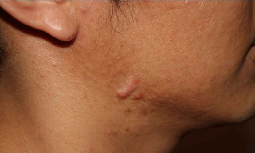 Keloid acne scars near neck