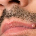 Treating Big, Painful, Infected Lip Pimples Fast