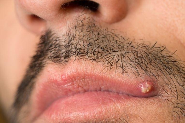 Lip pimple on upper lip line