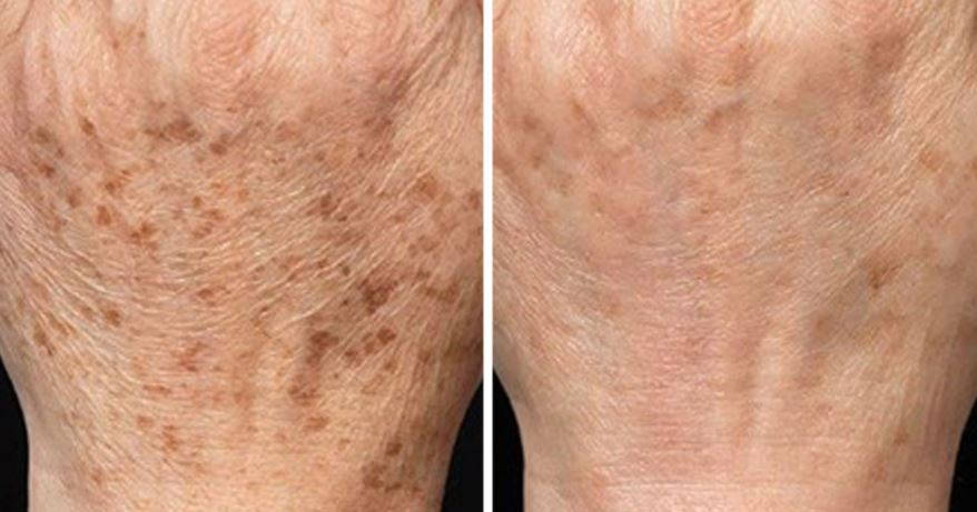 Liverspots on hands before and after removal by cyrotherapy