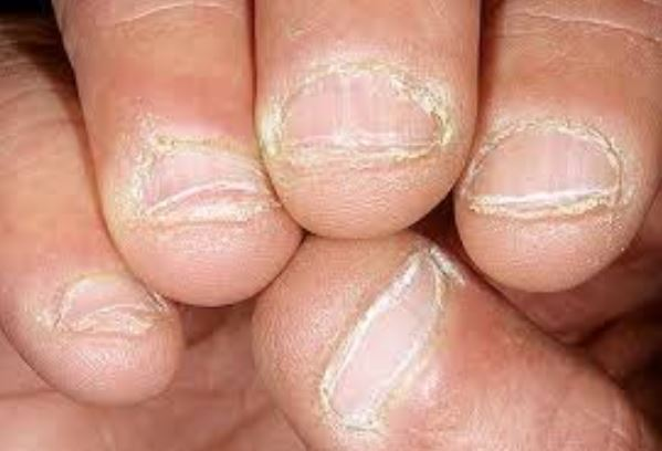 Nail biting can cause thick dry skin around your nails