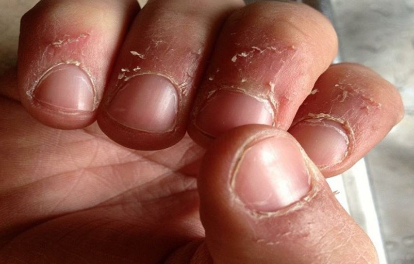 Peeling skin around nails