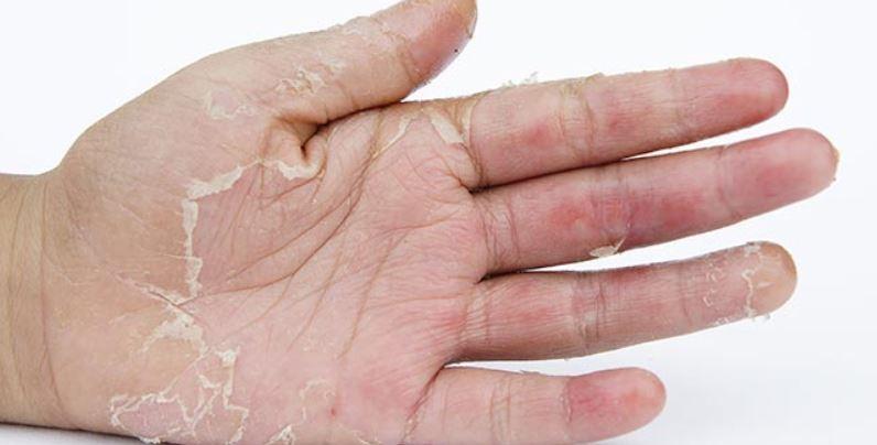 Peeling skin on hands, fingers and feet