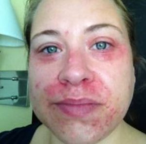 Perioral dermatitis around eyes and mouth