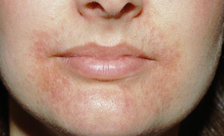 Perioral dermatitis dry skin rash around mouth
