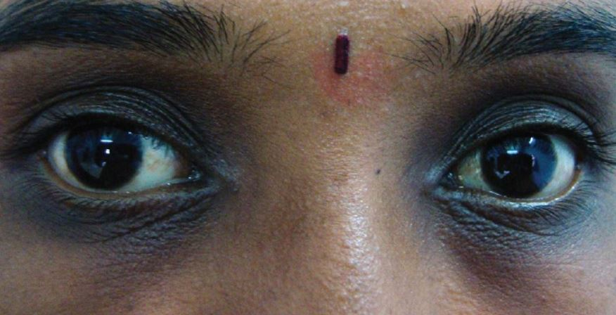 Periorbital Hyperpigmentation dark spots under eyes