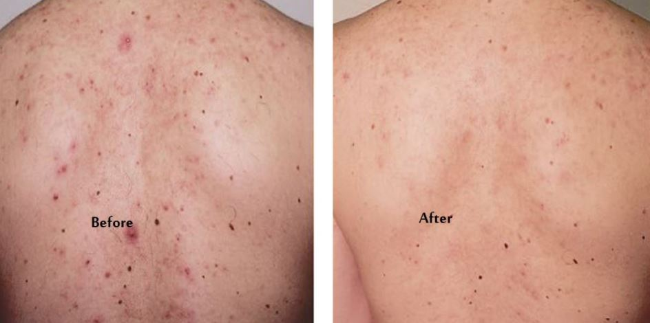Pimple on back before and after treatment