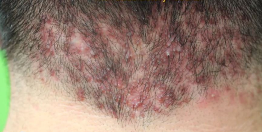 Pimple on back of head