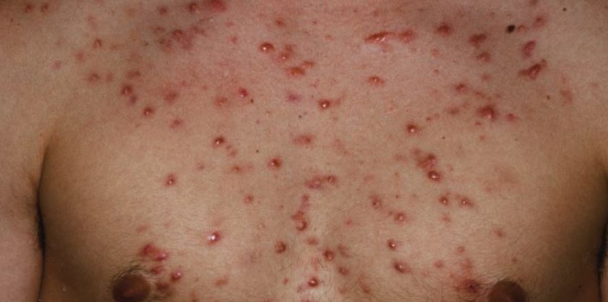 Pimple on chest in male