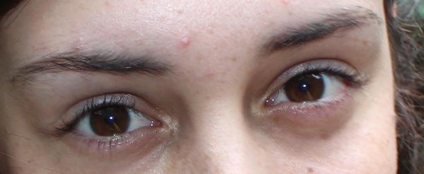 Pimple on eyebrows - between eyebrows