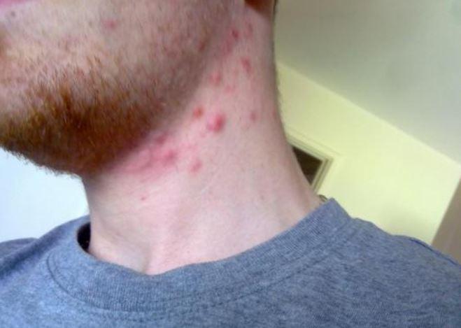 Pimple on neck