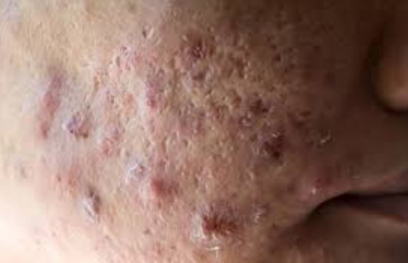 Pimple scabs