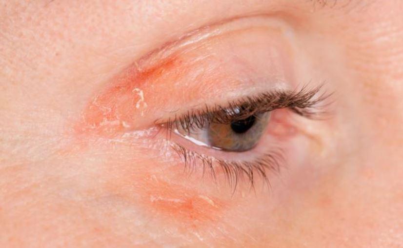 Psoriasis around eyes and eyelids