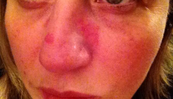 Redness and dry nose around skin due to psoriasis