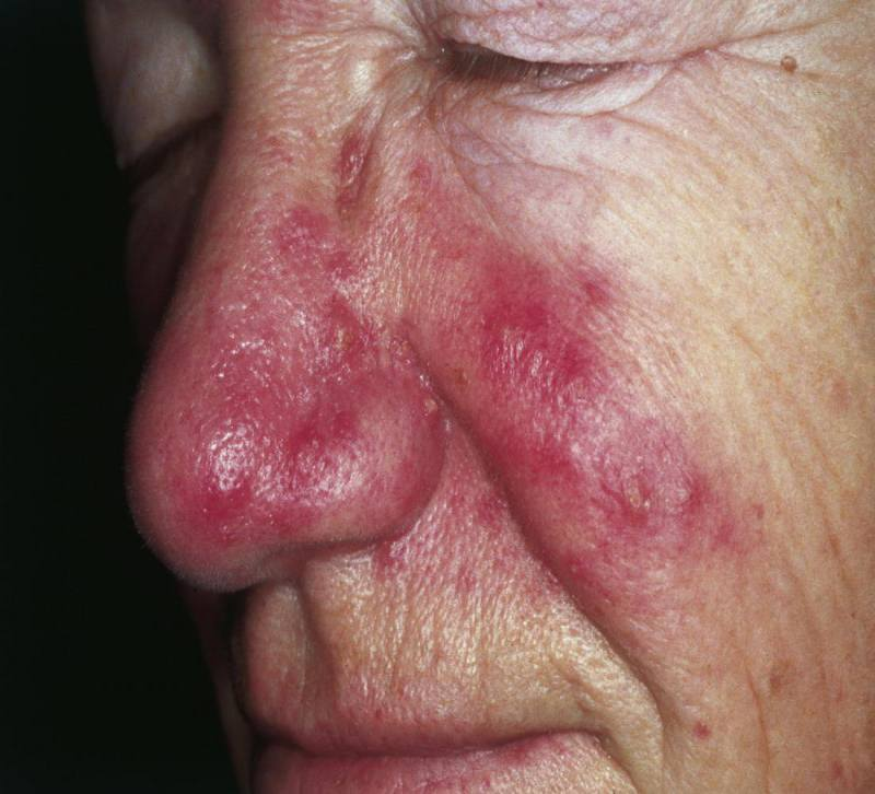 Redness around nose due to rosaea - Courtesy of Medical News Today