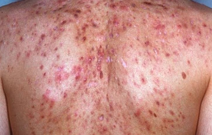 Severe acne scarring on back