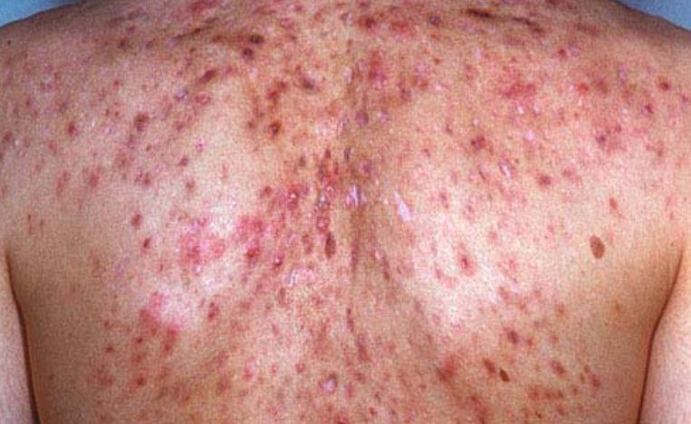 Severe pimple on back