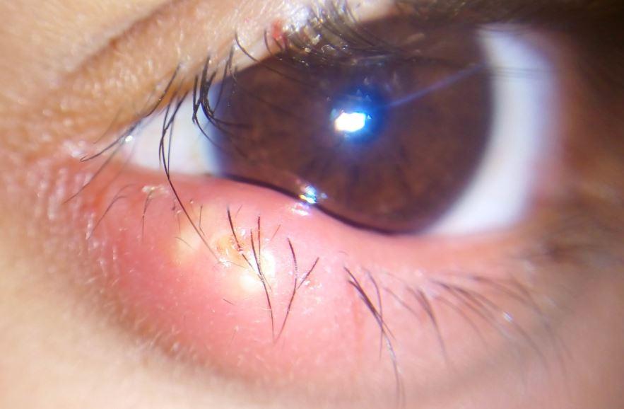 Stye on lower eyelid