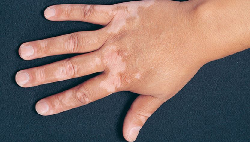 Vetiligo white patches on hand