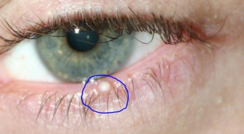 White bump on eyelid