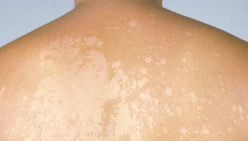 White patches on skin causes
