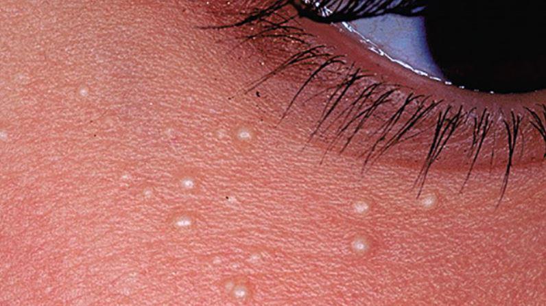 White spots on face - Under eyes