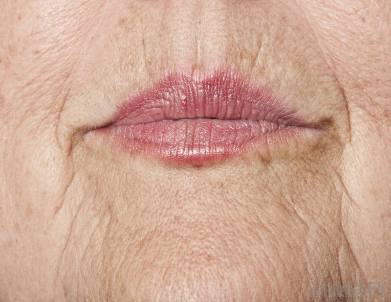 Causes of Wrinkled Lips and Fast Removal Methods