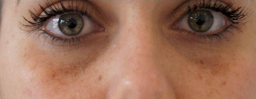 Brown spots under eyes