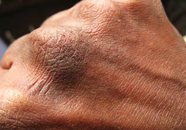 Cracked knuckle skin image