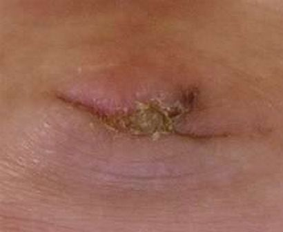 Crusty belly button
