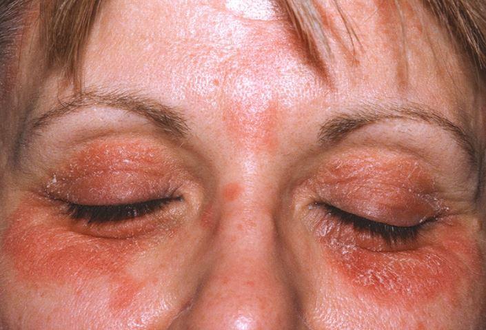 Eyelid eczema picture