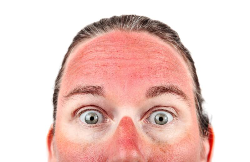 Burning skin face due to sunburn