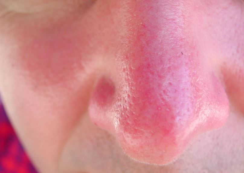 Sunburned nose - expect peeling at times