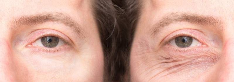 Under eye wrinkles after and before treatment