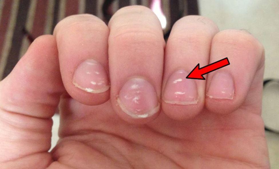 White Spots on Fingernails Cause, Treatment and Myths | Skincarederm