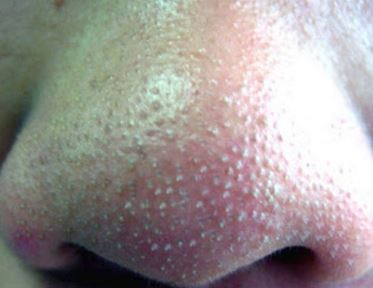 Whiteheads on nose and how to remove them