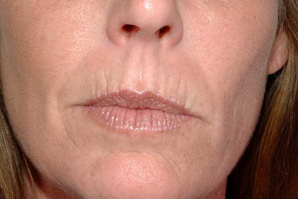 Wrinkles around mouth and lips