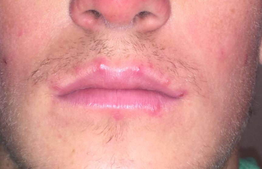 Acne around mouth - on lip and lip line edges