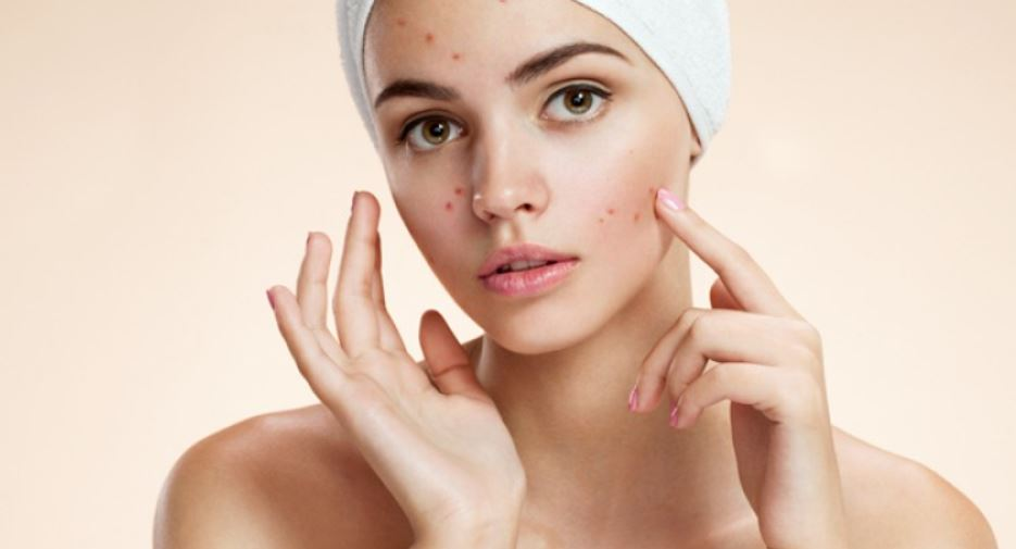 Acne prone skin best products