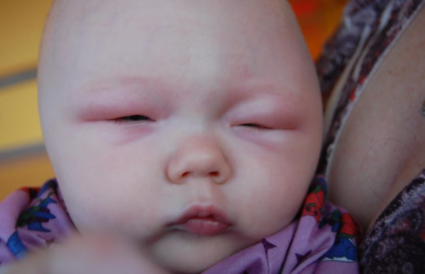 Baby with puffy eyes - swollen