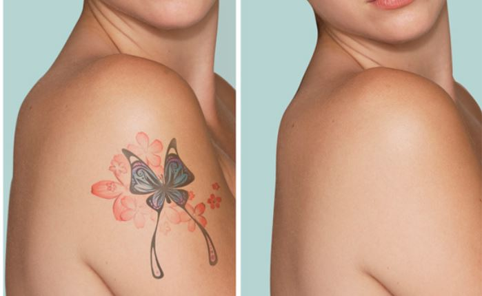 Before and after tattoo laser removal method