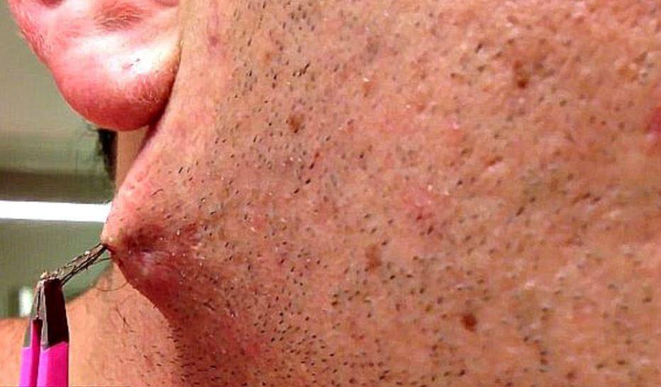 Deep ingrown hair on face removal