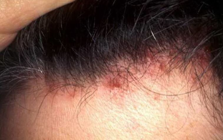 Hairline acne causes and treatments