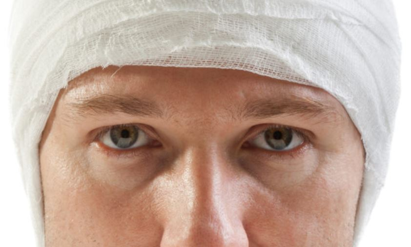 Head injuries can cause a swollen scalp