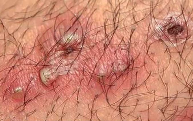 Ingrown pubic hair cysts