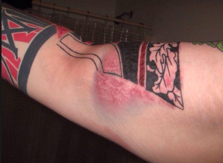Redness around tattoo