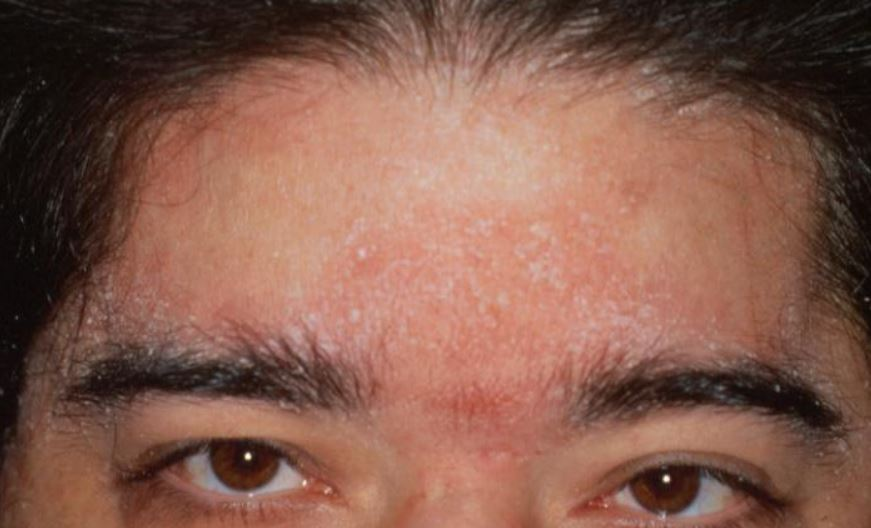 Seborrheic dermatitis on eyebrows