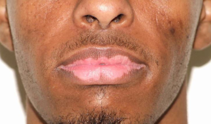 Vitiligo on lips picture